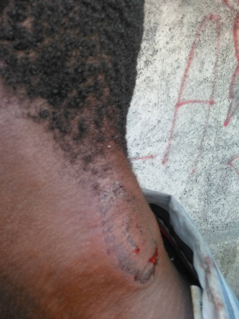 Port Au Prince - a striking worker received a rubber bullet to the neck.